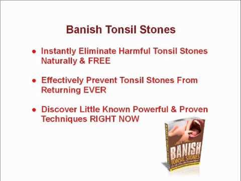 Diane Puttmans E Book Banish Tonsil Stones Pdf
