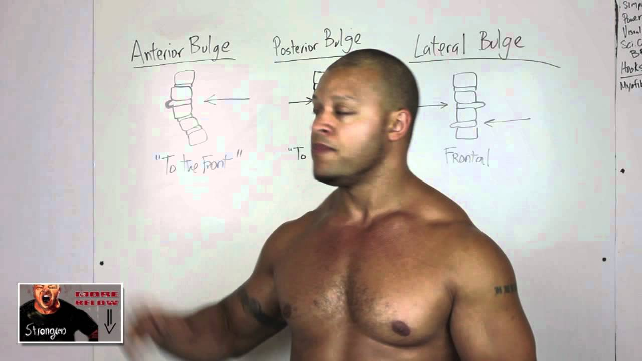 How To Workout With Back Pain, Bulging Disk / Herniated Disk