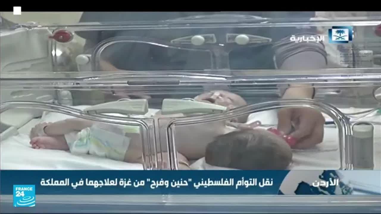 السعودية: 50 عملية جراحية ناجحة لفصل التوائم الملتصقة السيامية  - نشر قبل 2 ساعة