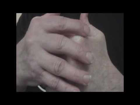 Rheumatoid Arthritis - Amazing New Natural Cure?