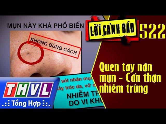 THVL | Lời cảnh báo - Kỳ 522: Quen tay nặn mụn - Cẩn thận nhiễm trùng