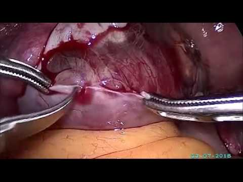complicated ovarian cyst