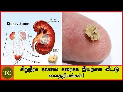 சிறுநீரக கல்லை கரைக்க இயற்கை வைத்தியங்கள்!   Natural Home Remedies for Kidney Stones - Tamil health