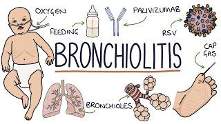 Acute Bronchiolitis, Bronchiolitis Obliterans-Organizing Pneumonia (BOOP) | Pulmonology.