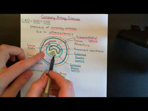 Coronary Artery Disease Part 1