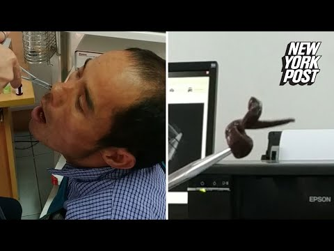 AJ - Doctor Pulls Massive Leech Out of Man's Nose