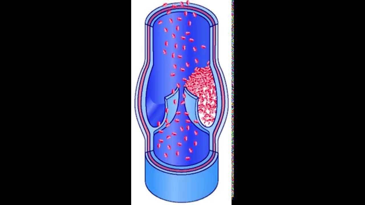 Deep Vein Thrombosis - OrthoInfo - AAOS