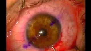 Yüksek Astigmat - Op.Dr.Levent Akçay