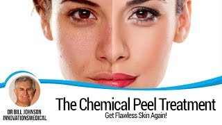 The Chemical Peel Treatment, VI Peel, featured on CBS  Innovations MedSpa