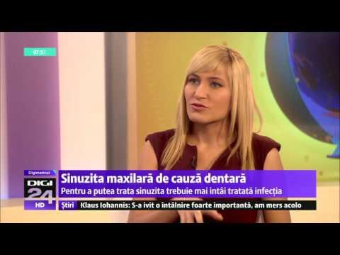 Sinuzita maxilara de cauza dentara