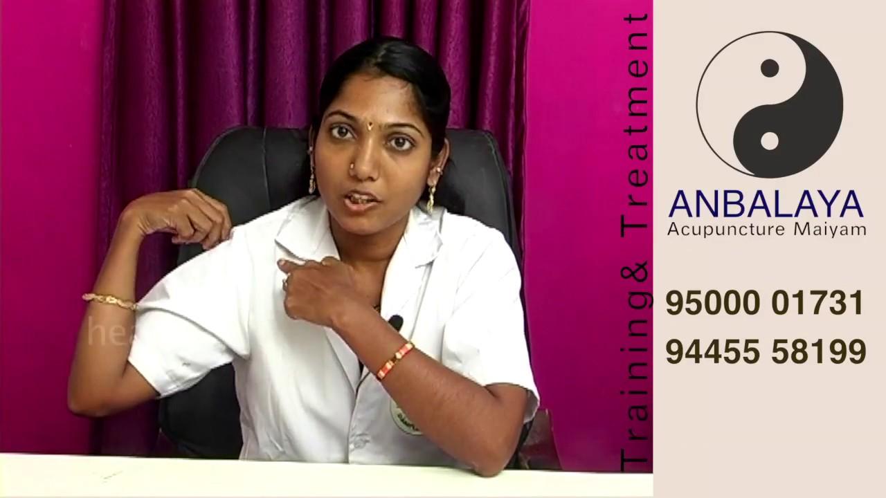Acupuncture treatment for frozen shoulder - YouTube