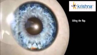 Bladeless Lasik Eye Surgery in Mumbai | Laser Eye Treatment in India