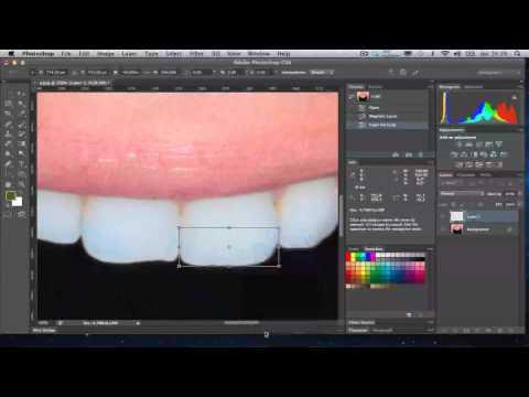 Arrumando O Dente