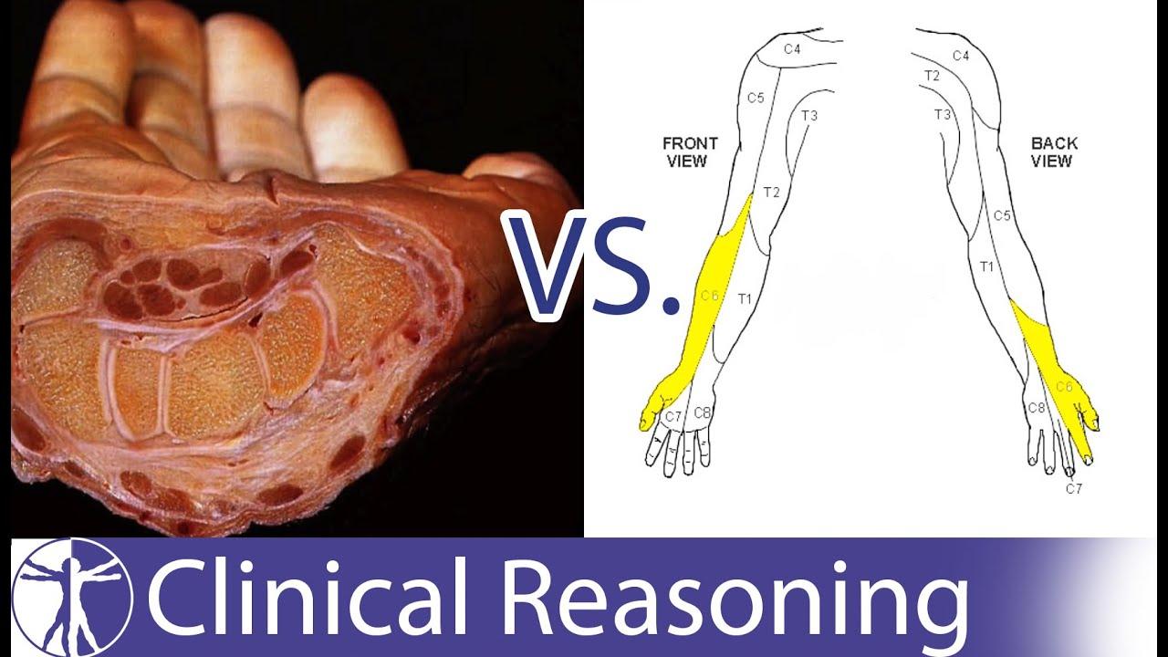 Carpal Tunnel Syndrome mimicking C6 C7 Radiculopathy