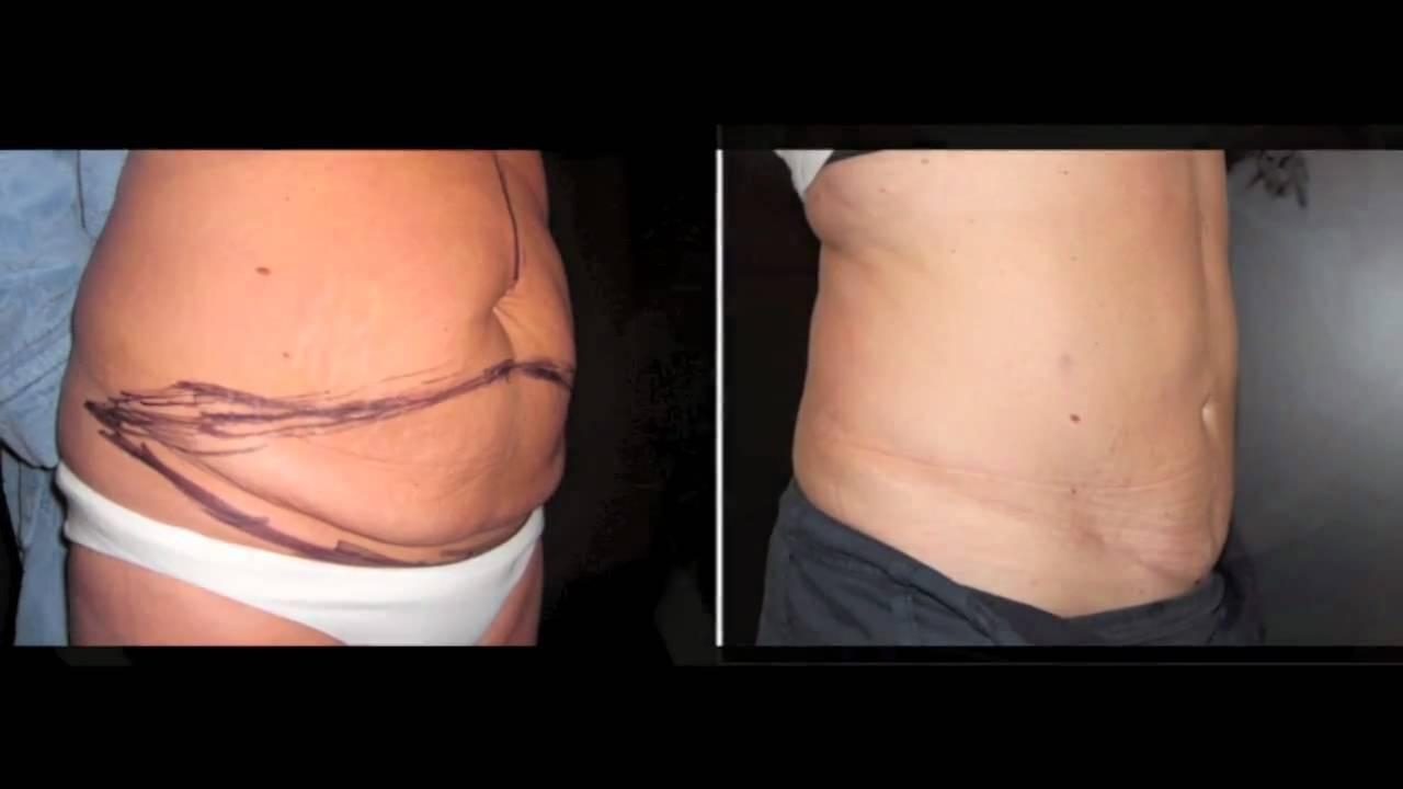 Bukplastik F 246 Re Och Efter Bilder P 229 Nackakliniken Tummy