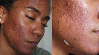 GREEN PEEL Full Pro¢ess { Procedure, Peeling, Before & After} *NO CHEMICAL PEEL*