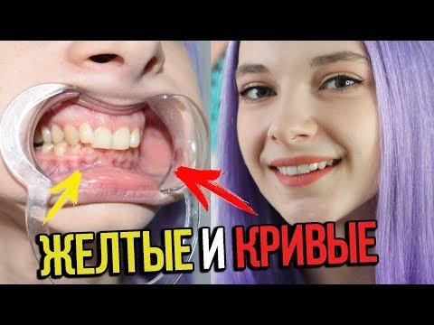 Как самому выровнять зубы