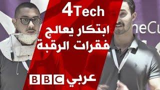 إبتكار أردني يعالج فقرات الرقبة - 4tech