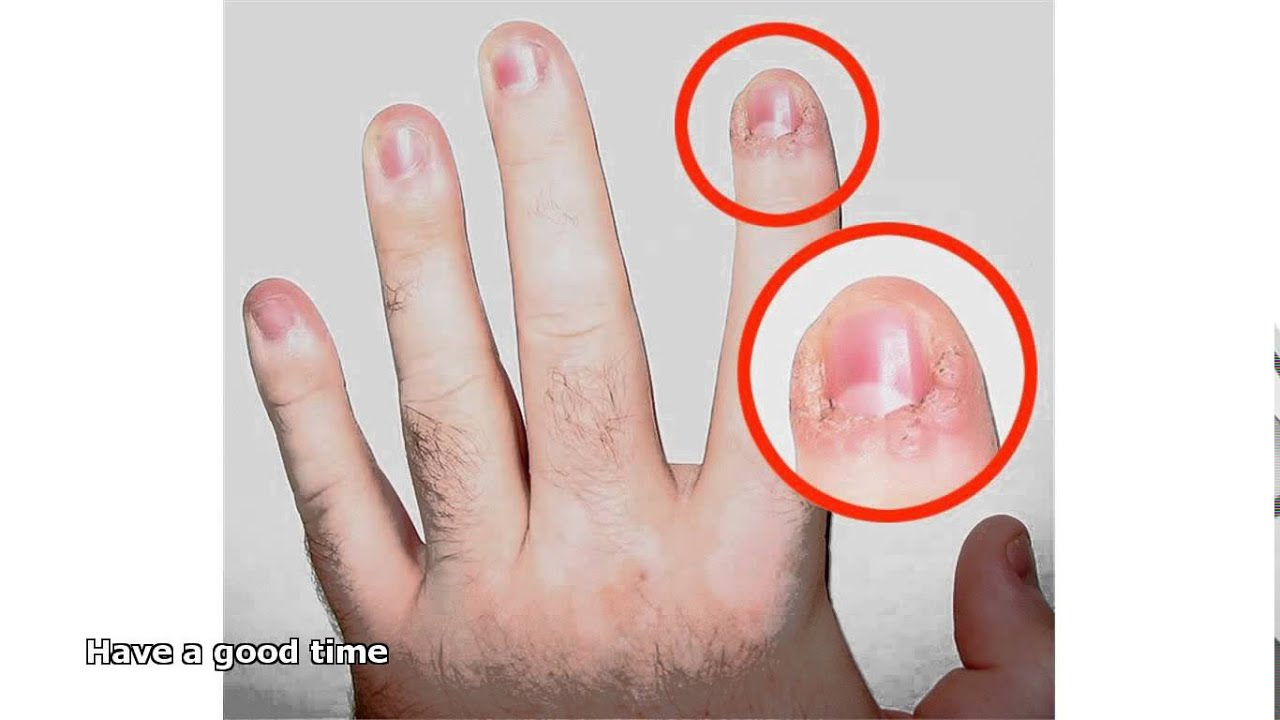 Fungus on the fingers