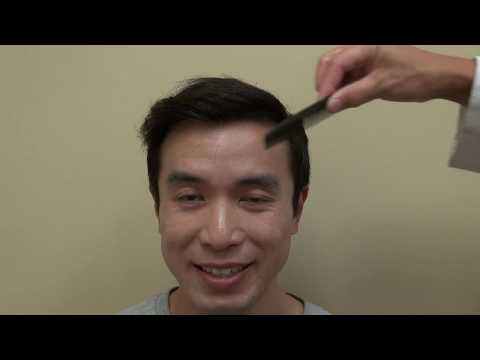 manual-fue-hair-restoration-one-year-post-op-transplant-result-by-dr-diep-hair-loss-doctor