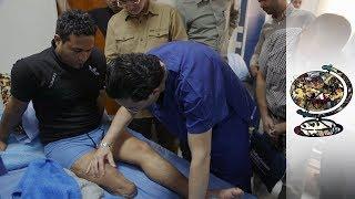 The Machine Man: Pioneering Prosthetic Surgeon Returns To Iraq