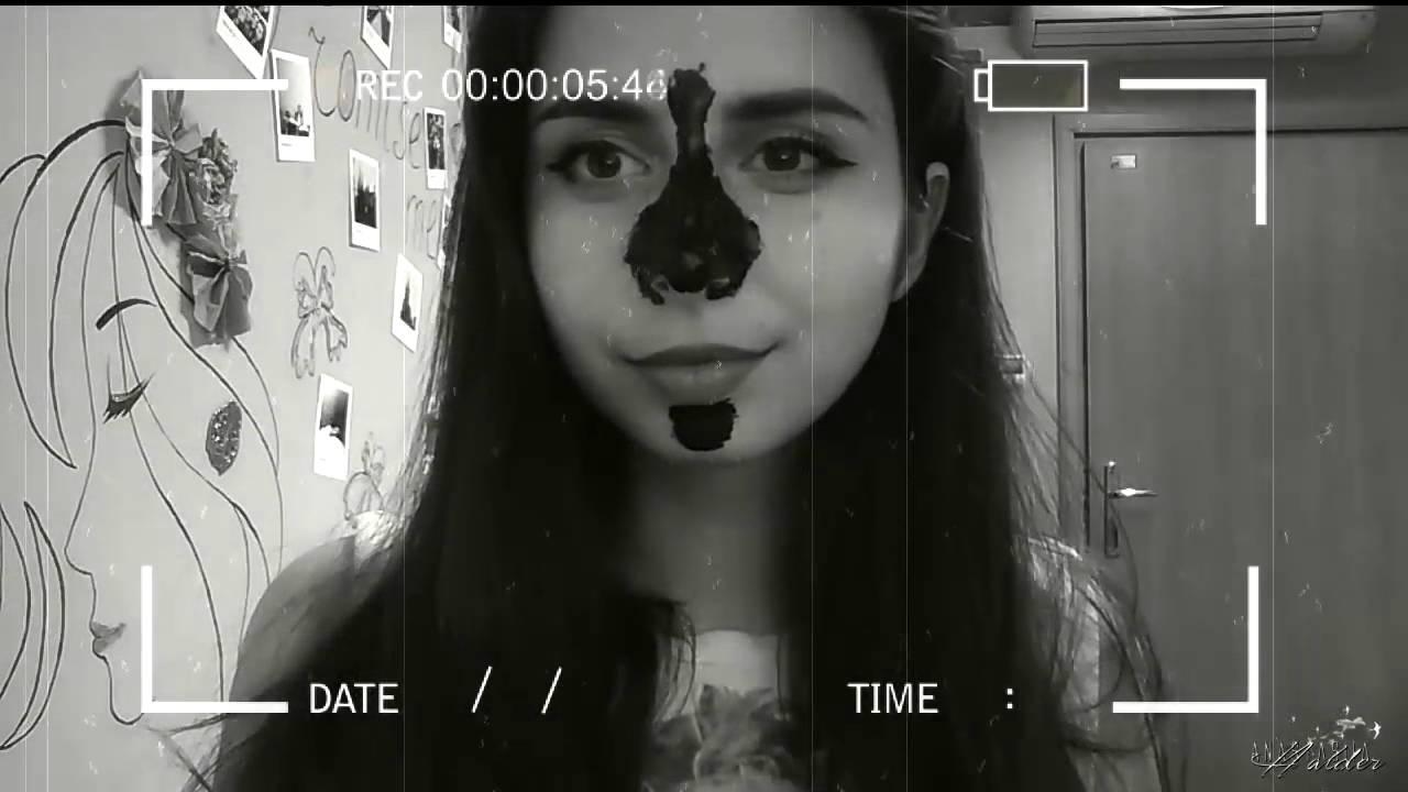 Черные точки на лице, как избавиться от черных точек