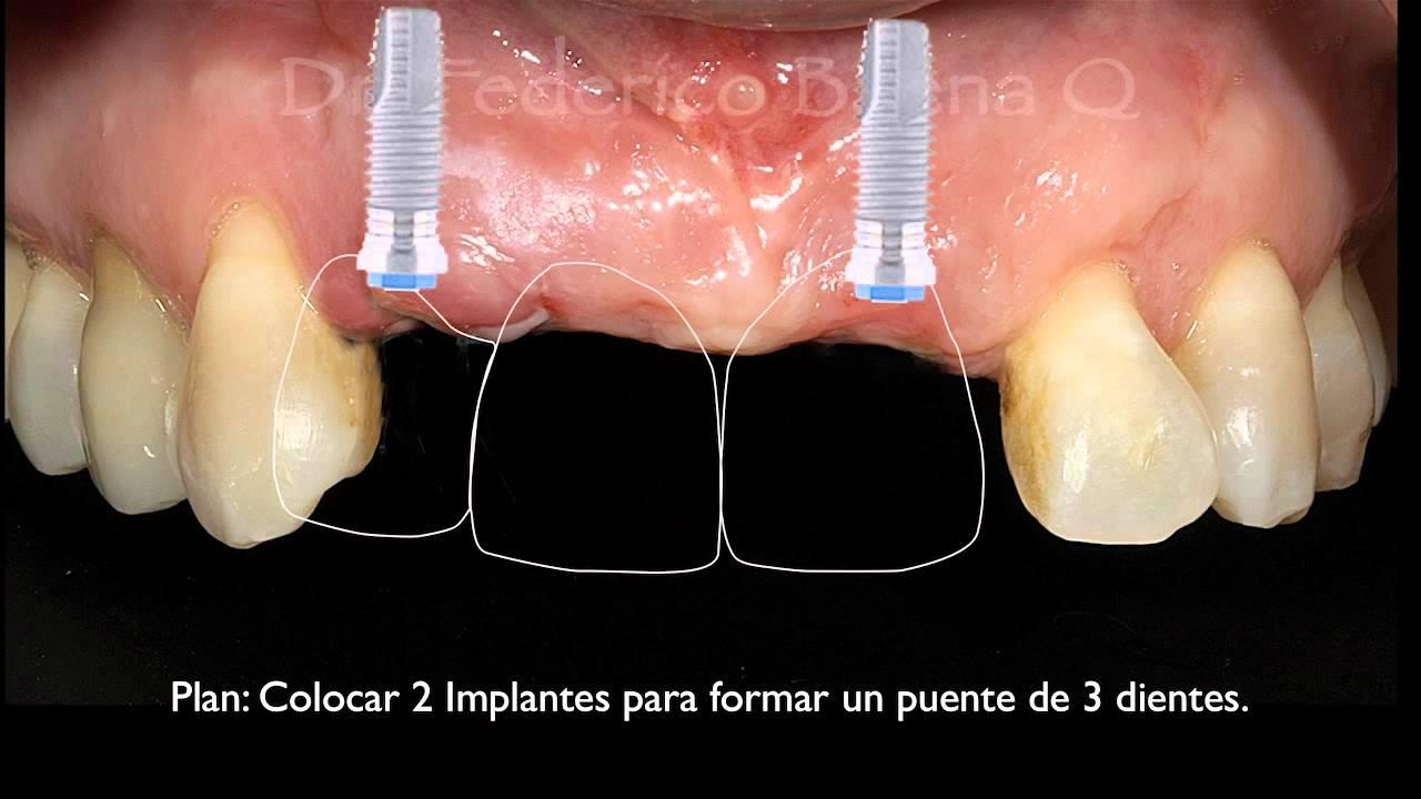 Tratamiento de implantes dentales precios