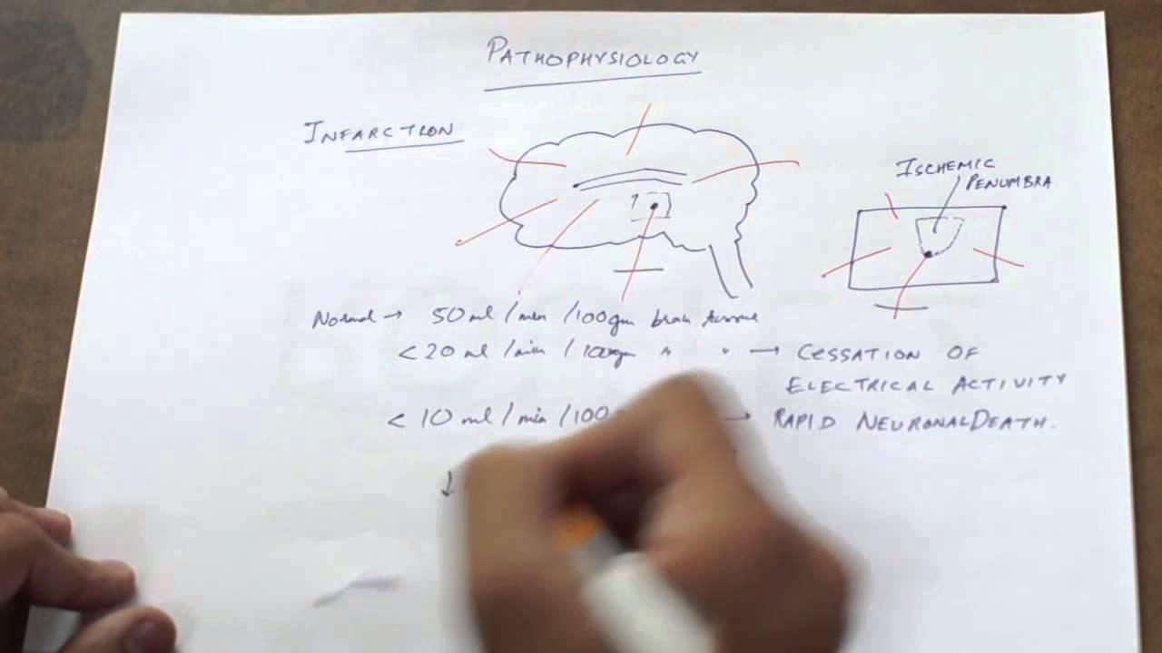 Berühmt Anatomy And Physiology Of Cva Zeitgenössisch - Anatomie ...