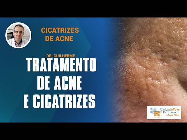Acne & Cicatrizes | Peeling + Laser Fracionado ( Tratamento para cicatrizes de acne)