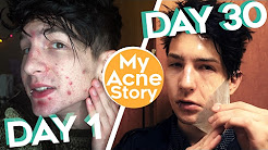 hqdefault - How To Get Rid Of Acne In 30 Days