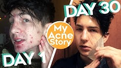 hqdefault - How To Get Rid Of Acne When Proactive Doesnt Work