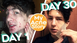 How I Cleared My Acne in 30 Days.