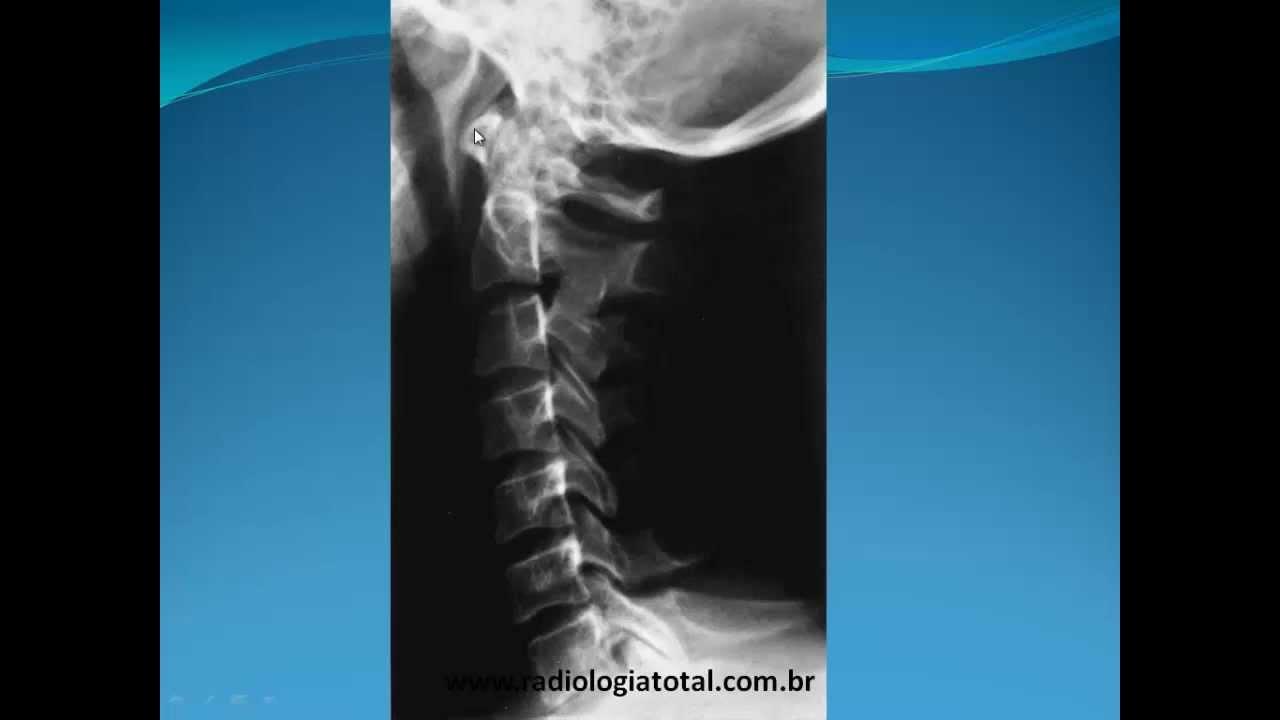 Moderno Radiología Ct Anatomía Festooning - Imágenes de Anatomía ...
