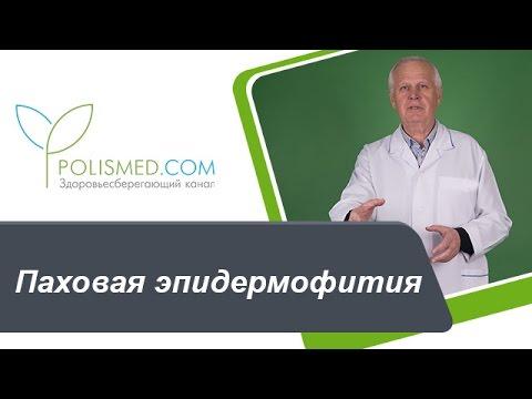 Паховая эпидермофития: причины, симптомы, диагностика, последствия