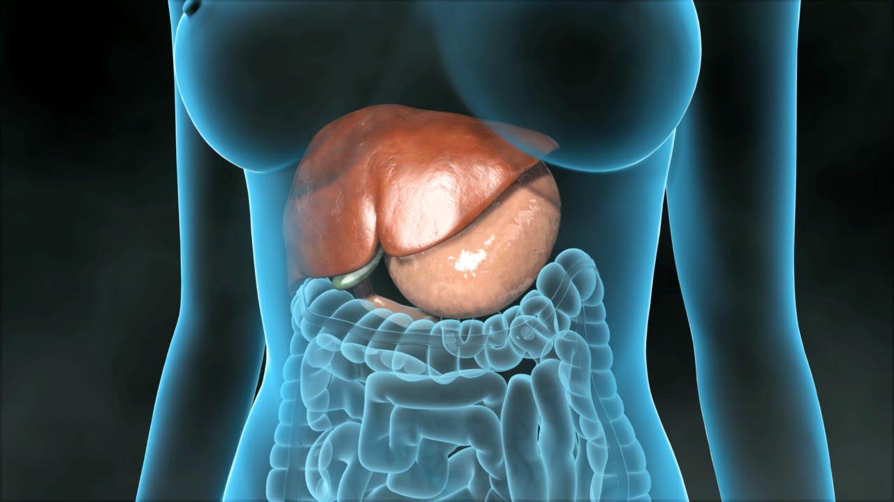 Cholezystektomie (Entfernung der Gallenblase) - YouTube
