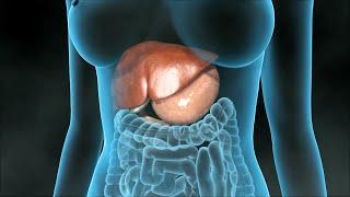 Cholezystektomie (Entfernung der Gallenblase)