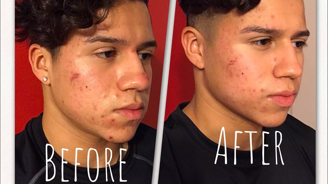 ACCUTANE MONTH 1 SIDE EFFECTS & SKIN UPDATE (products and ...