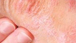 De seca tratamento pele de pernas