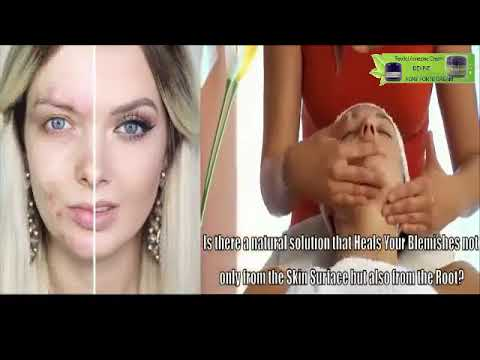 Acnezine Review Does Really Work Revitol Acnezine Acne Youtube