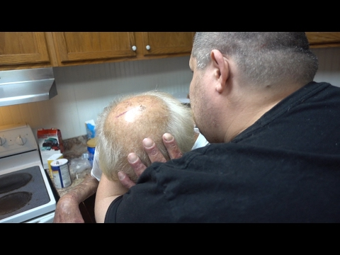 ANGRY GRANDPA HAS CANCER