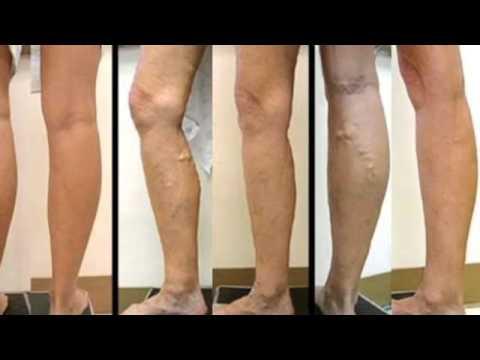 Cum de a trata remedii folic varicose - Artrită