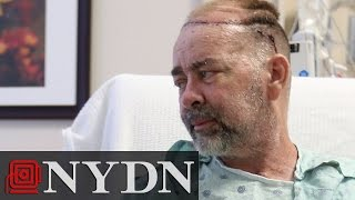 First Partial Skull and Scalp Transplant Completed at Texas Hospital