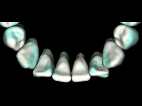 Lower IPR collisions demonstrated with SureSmile s...