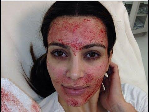 Kim Kardashian sometida a tratamiento de belleza con inyección de sangre