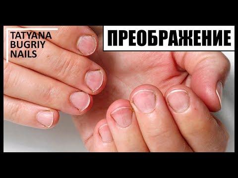 Широкие короткие ногти