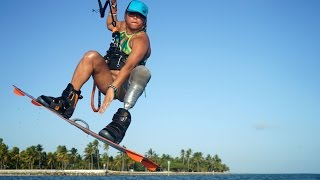 Amputee Becomes Kiteboarding Pro