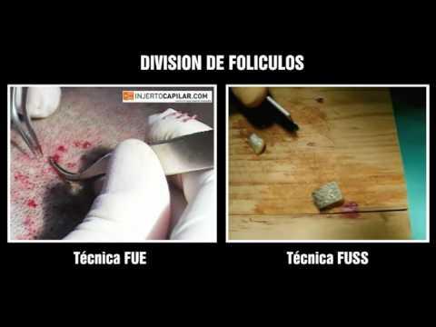 FUE vs FUSS