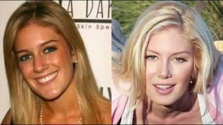 Heidi Montag: Before and After 2006-2010
