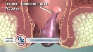 Премахване на хемороиди без операция.mpeg