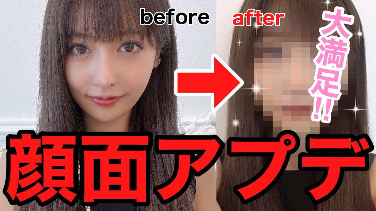 【驚異】整形した!新しい顔、公開!!!!